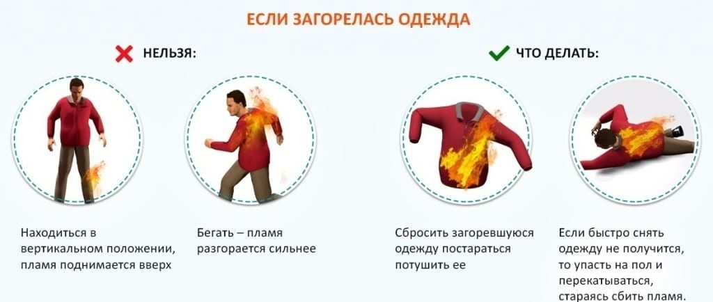загорелась одежда